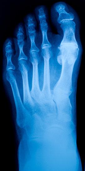 radiografia alluce valgo